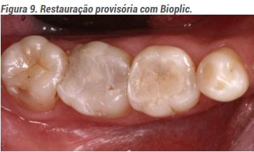 Restauração provisória com Bioplic