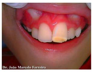 Figura 1 - Mancha no dente
