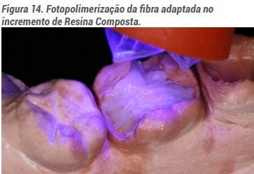 Fotopolimerização da fibra adaptando no incremento de resina composta