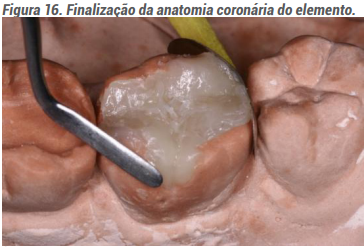 Finalização da anatomia coronária do elemento