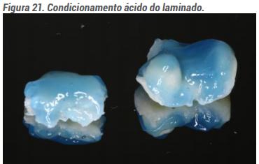 Condicionamento ácido do laminado