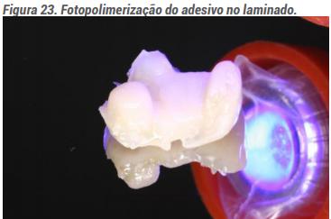 Fotopolimerização do adesivo no laminado