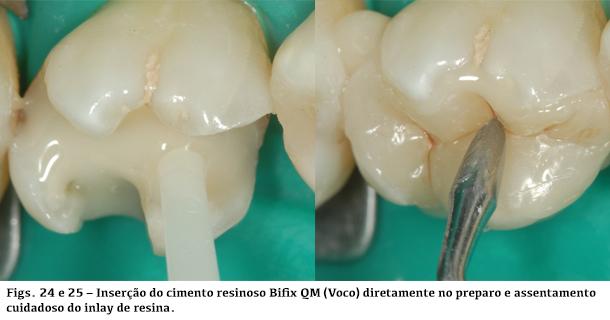 Inserção do cimento resinoso Bifix QM (Voco) diretamente no preparo e assentamento cuidadoso do inlay de resina