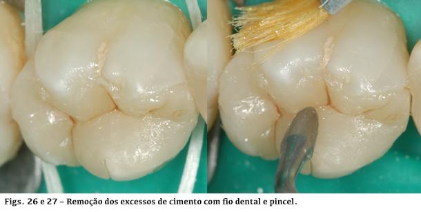 Remoção dos excessos de cimento com fio dental e pincel