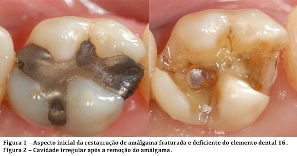 Aspecto inicial da restauração de amálgama deficiente e fraturada, no dente 16 e cavidade irregular após remoção de amálgama