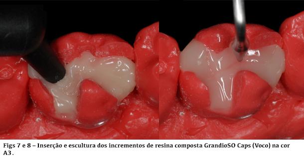 Inserção de escultura dos incrementos de resina composta GrandioSO Caps na cor A3