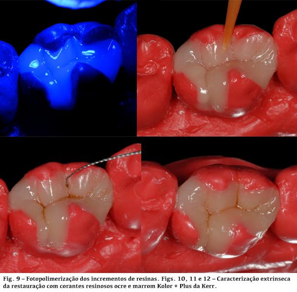 Fotopolimerização dos incrementos de resinas e caracterização extrínseca da restauração com corantes resinosos ocre e marrom Kolor + Plus da Kerr