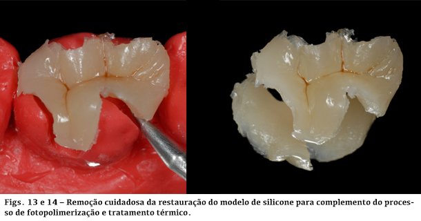 Remoção cuidadosa da restauração do modelo de silicone para complemento do processo de fotopolimerização e tratamento térmico