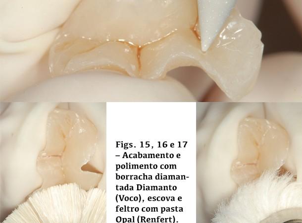 Acabamento e polimento com borracha diamantada Diamanto, escova e feltro com pasta Opal (Renfert)