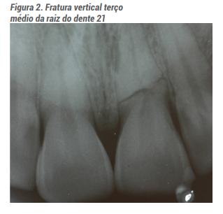 Fratura Vertical Terço Médio da Raiz do Dente 21