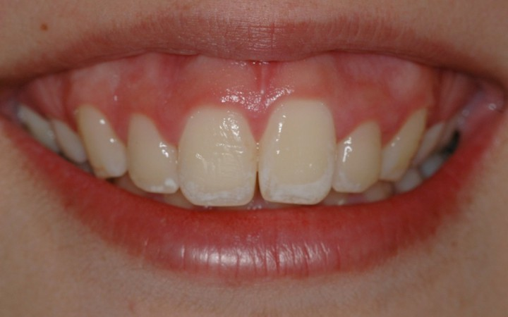 Análise inicial - Microabrasão Associada ao Clareamento Dental