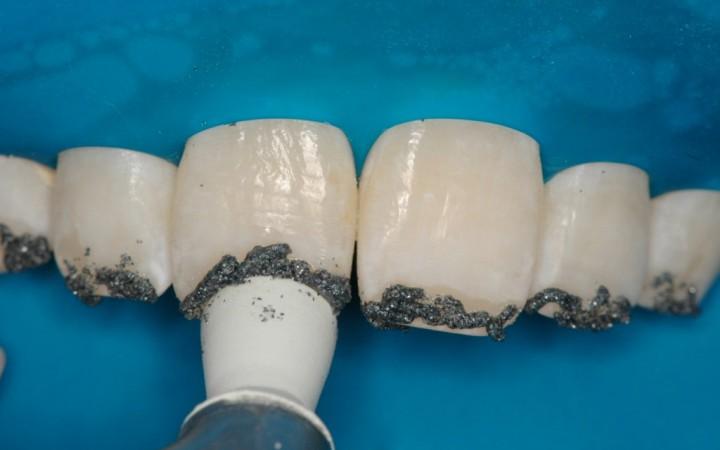 Clareamento - Microabrasão Associada ao Clareamento Dental