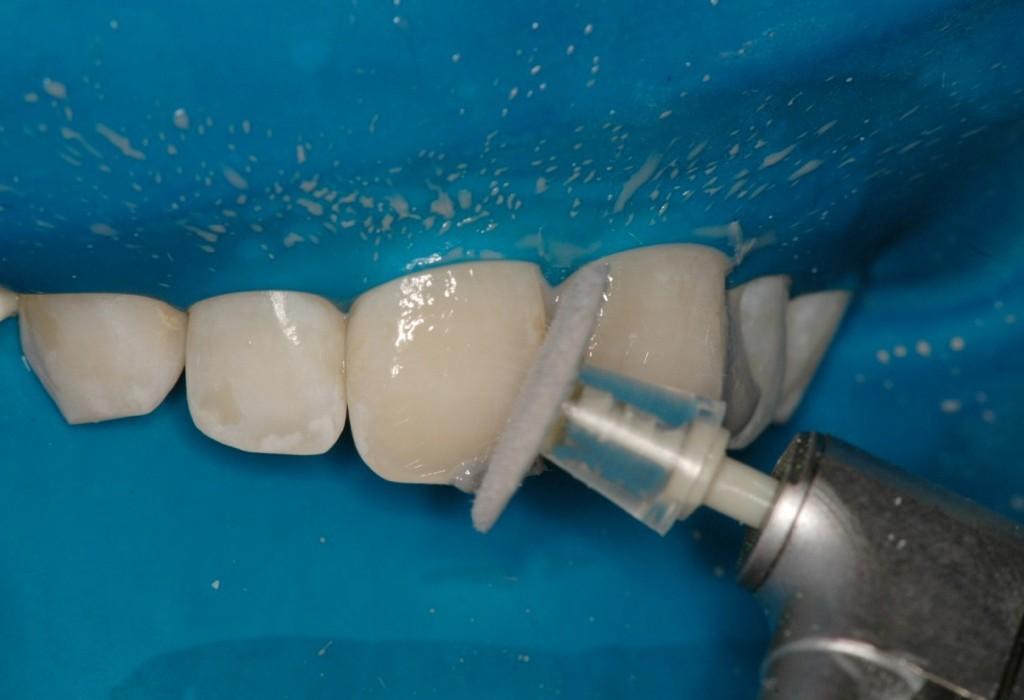 Microabrasão Associada ao Clareamento Dental
