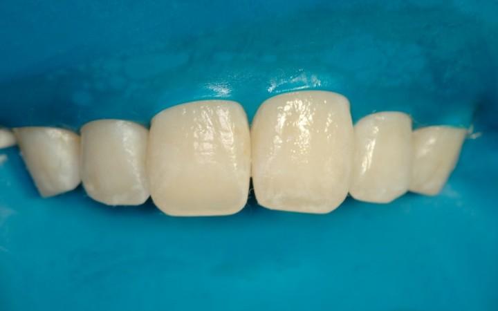 Aspecto dos dentes após o microabrasamento