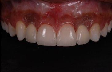 Microlaminados-reabilitacao-estetica-11