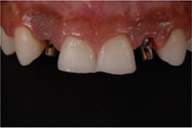 Microlaminados-reabilitacao-estetica-13