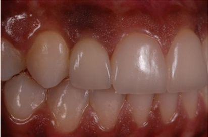 Microlaminados-reabilitacao-estetica-14