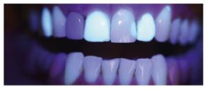 fluorescência nas cerâmicas dentais 2
