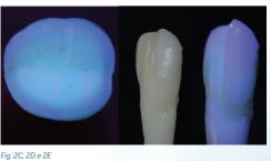 fluorescência nas cerâmicas dentais 4