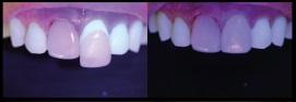 fluorescência nas cerâmicas dentais 6