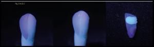 fluorescência nas cerâmicas dentais 8