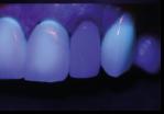 fluorescência nas cerâmicas dentais 10