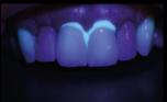 fluorescência nas cerâmicas dentais 12