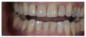 fluorescência nas cerâmicas dentais 1