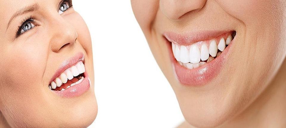 As diferenças entre as facetas de porcelana e as lentes de contato