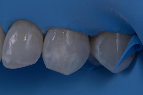 mancha hipoplasica 6