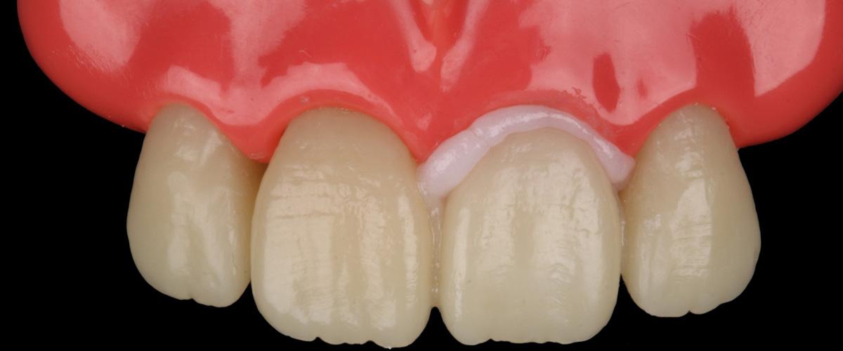 Caso clínico 3M: A importância da prova com o RelyX™ Try-In Paste