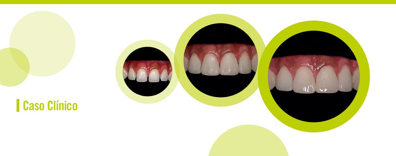 Periodontia e dentística: interação para um sorriso harmônico