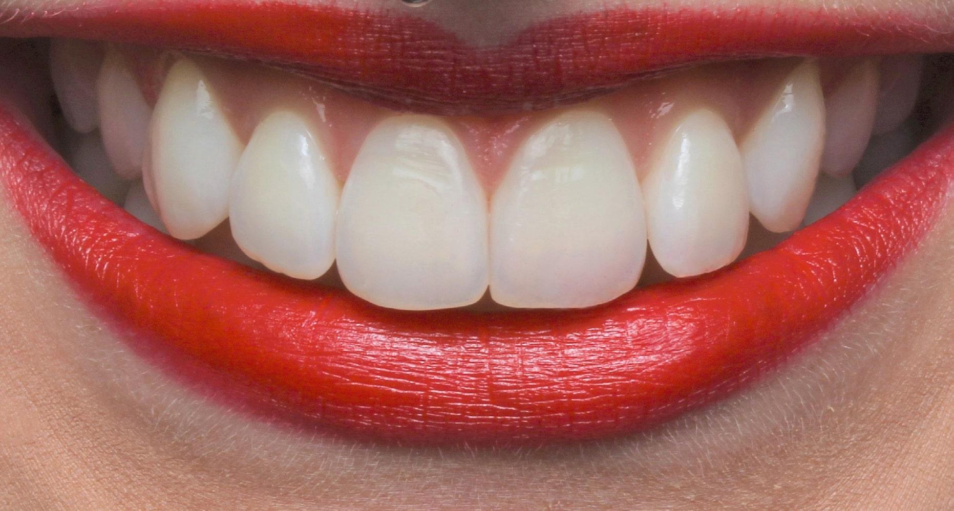Caso clínico: Clareamento dental caseiro com Whiteness Perfect