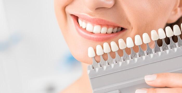 Verificação de cor dos dentes próximo a escala de cor