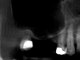 reabilitação de região posterior de maxila - figura 1