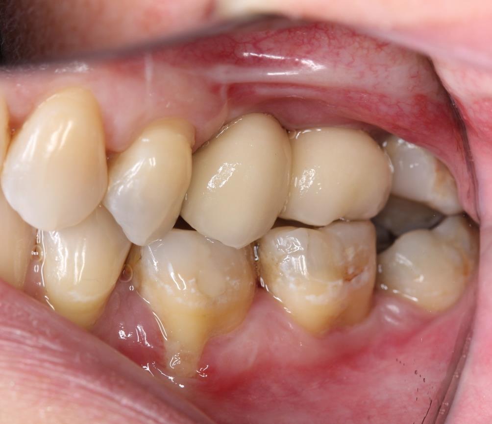 reabilitação de região posterior de maxila - figura 11