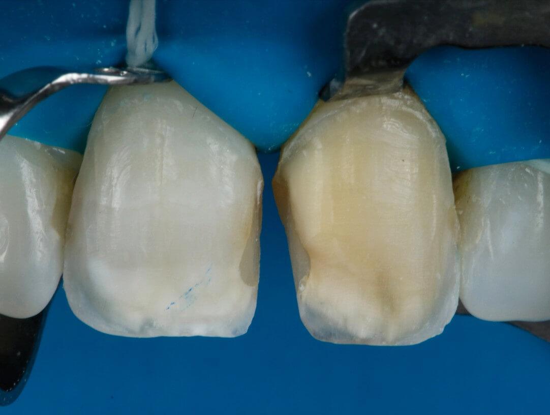 pinos de fibra de vidro dentes preparados