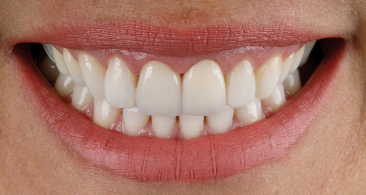 Clareamento dental: parceria entre dentista e paciente