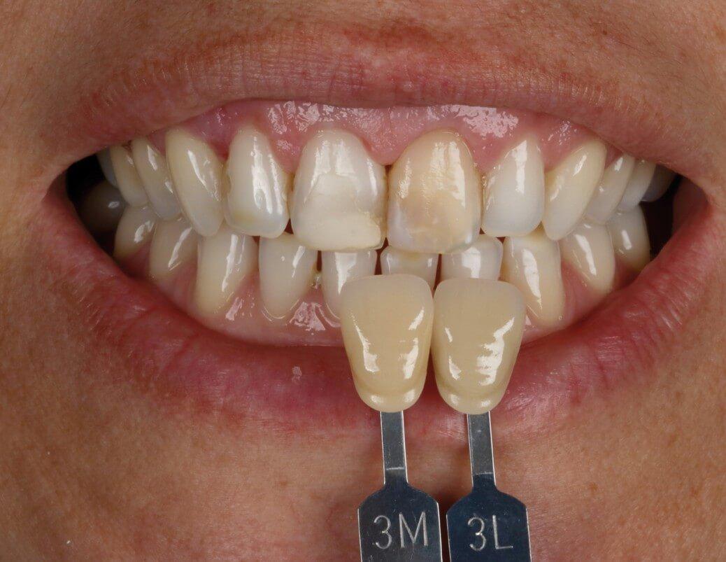 pinos de fibra de vidro sorriso inicial tomada de cor incisivo central escurecido