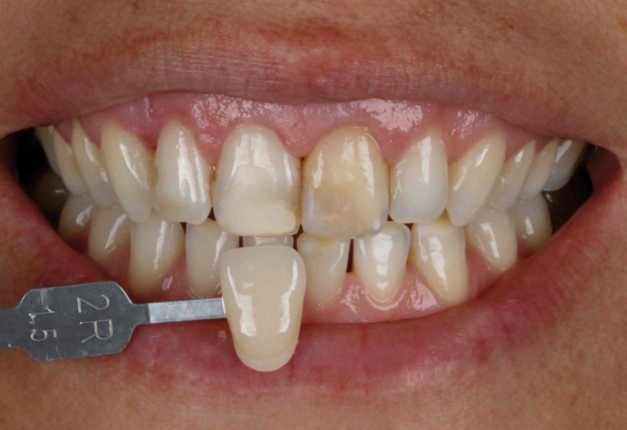 pinos de fibra de vidro na interação entre tratamentos estéticos