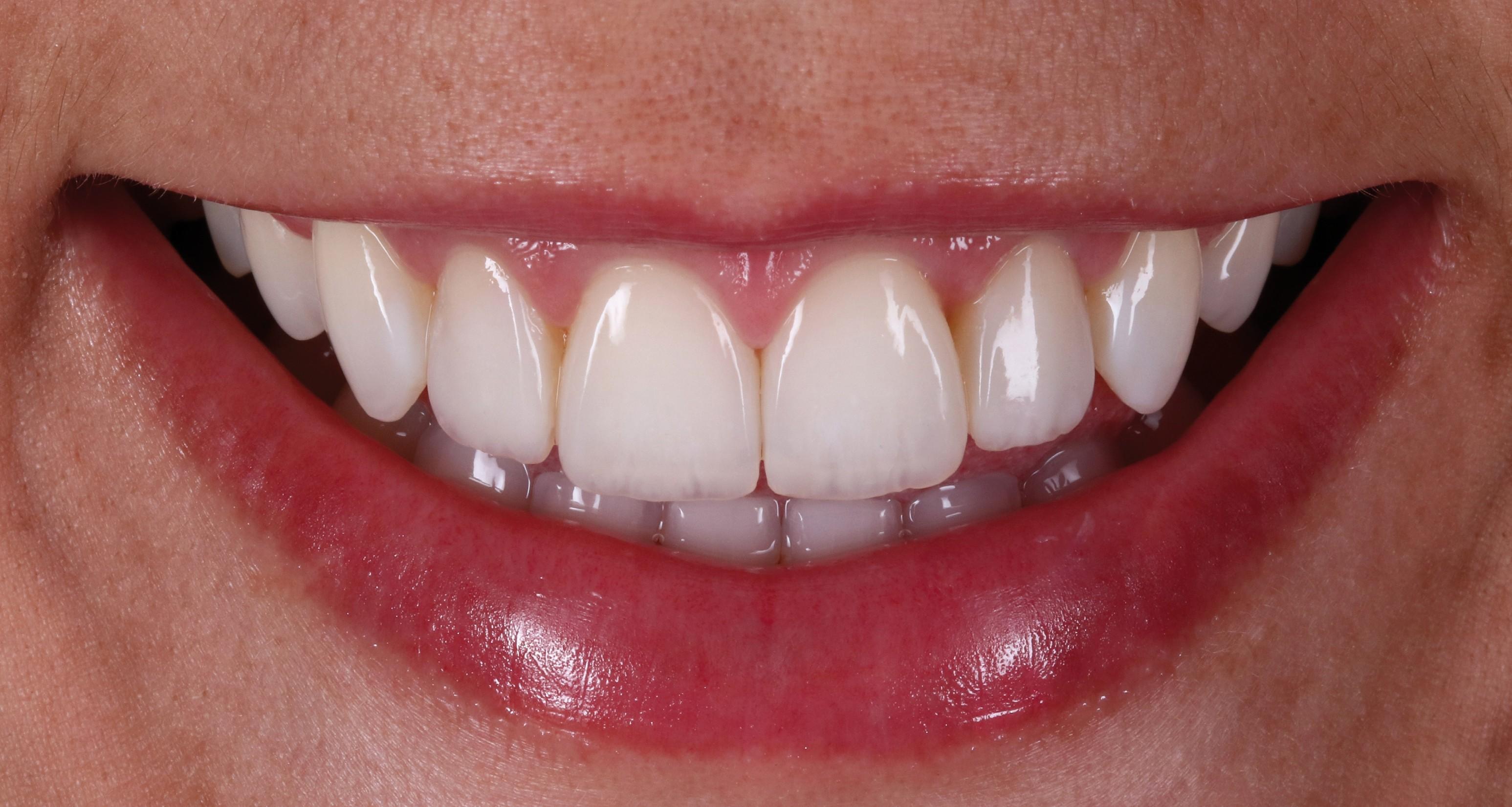 Transformação do sorriso através da reprodução da translucidez e opalescência incisal com compósitos restauradores