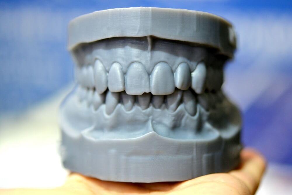 Impressora 3D na odontologia: por que ter uma?