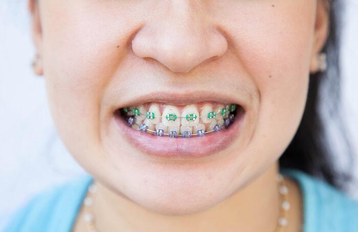Boca de menina branca sorrido com aparelho odontológico