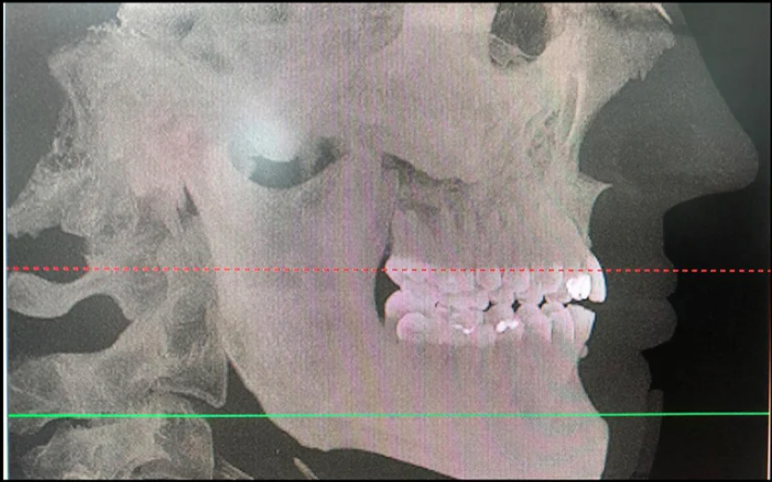 Radiografia do perfil do paciente